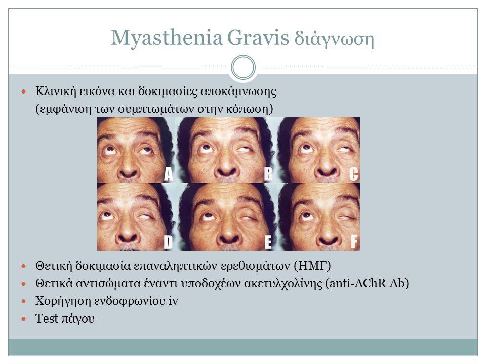 Myasthenia Gravis διάγνωση