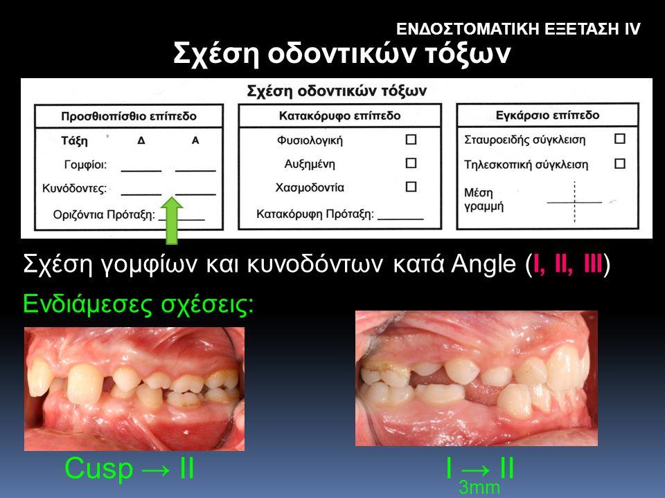 Σχέση οδοντικών τόξων Cusp → II I → II