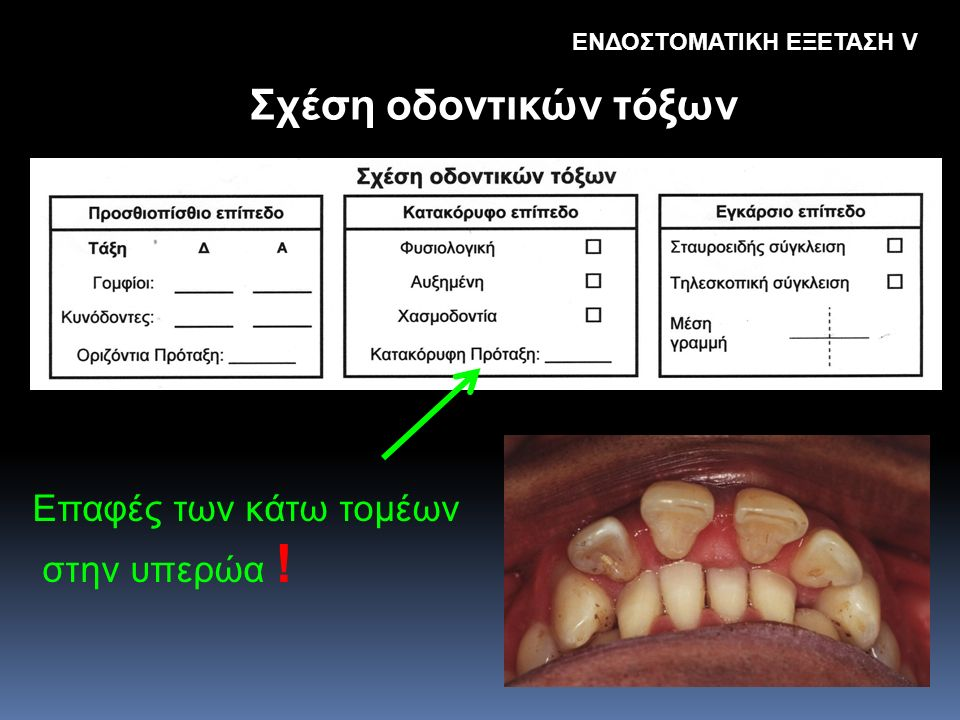 Σχέση οδοντικών τόξων Eπαφές των κάτω τομέων στην υπερώα !