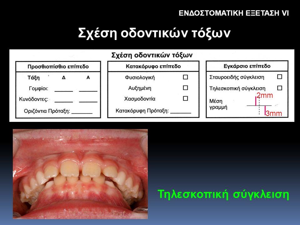 Σχέση οδοντικών τόξων Τηλεσκοπική σύγκλειση ΕΝΔΟΣΤΟΜΑΤΙΚΗ ΕΞΕΤΑΣΗ VΙ