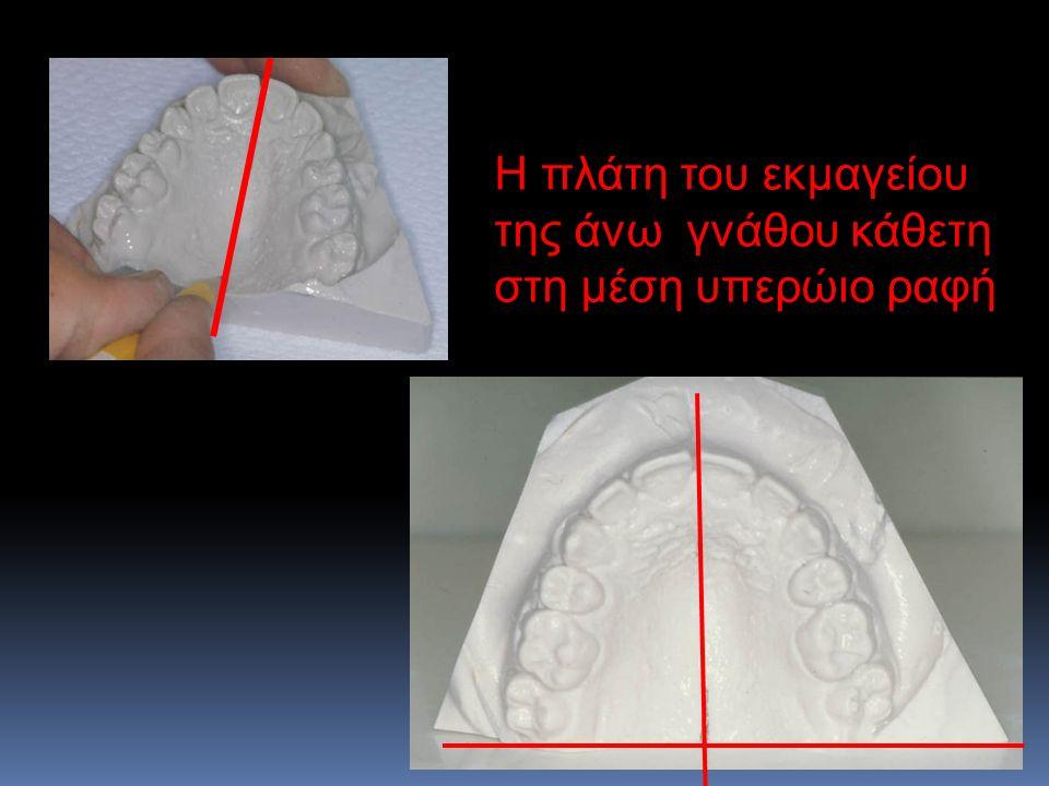 Η πλάτη του εκμαγείου της άνω γνάθου κάθετη στη μέση υπερώιο ραφή
