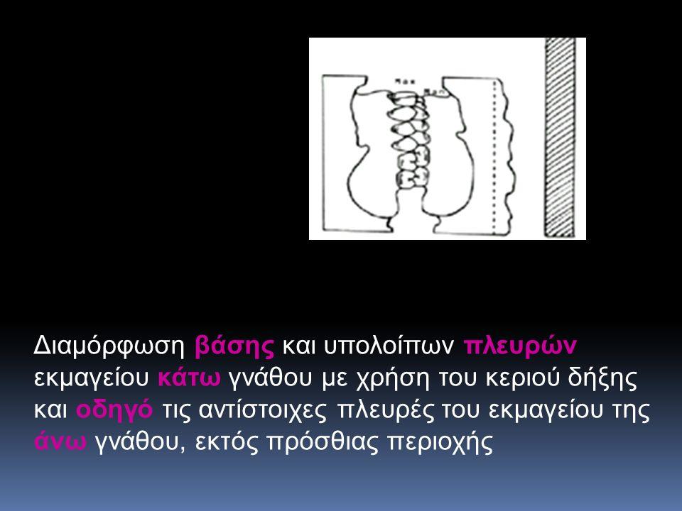 Διαμόρφωση βάσης και υπολοίπων πλευρών εκμαγείου κάτω γνάθου με χρήση του κεριού δήξης και οδηγό τις αντίστοιχες πλευρές του εκμαγείου της άνω γνάθου, εκτός πρόσθιας περιοχής