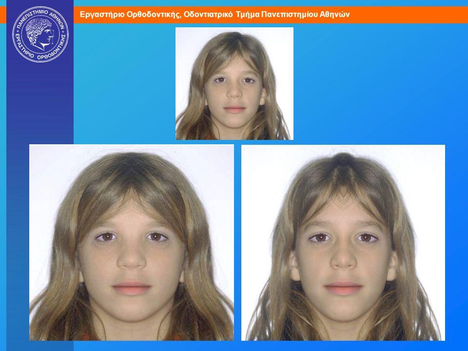 Φυσιολογική ασυμμετρία, εμφανής με σύνθεση του προσώπου από το δεξιό ή το αριστερό ημιμόριο μόνο.