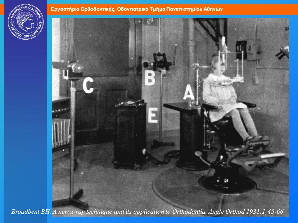 Δύο πηγές ακτίνων Χ (B, C) για λήψη πλαγίας και οπισθοπρόσθιας κεφαλομετρικής ακτινογραφίας.