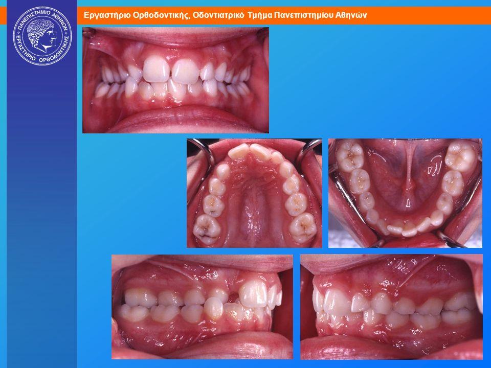 (092018) Μικτός φραγμός. Μόνιμα δόντια: άνω κεντρικοί, κάτω 4 τομείς, 4 μόνιμοι γομφίοι. Πρώιμο στάδιο μικτού φραγμού, οδοντική ηλικία περίπου 7-8.