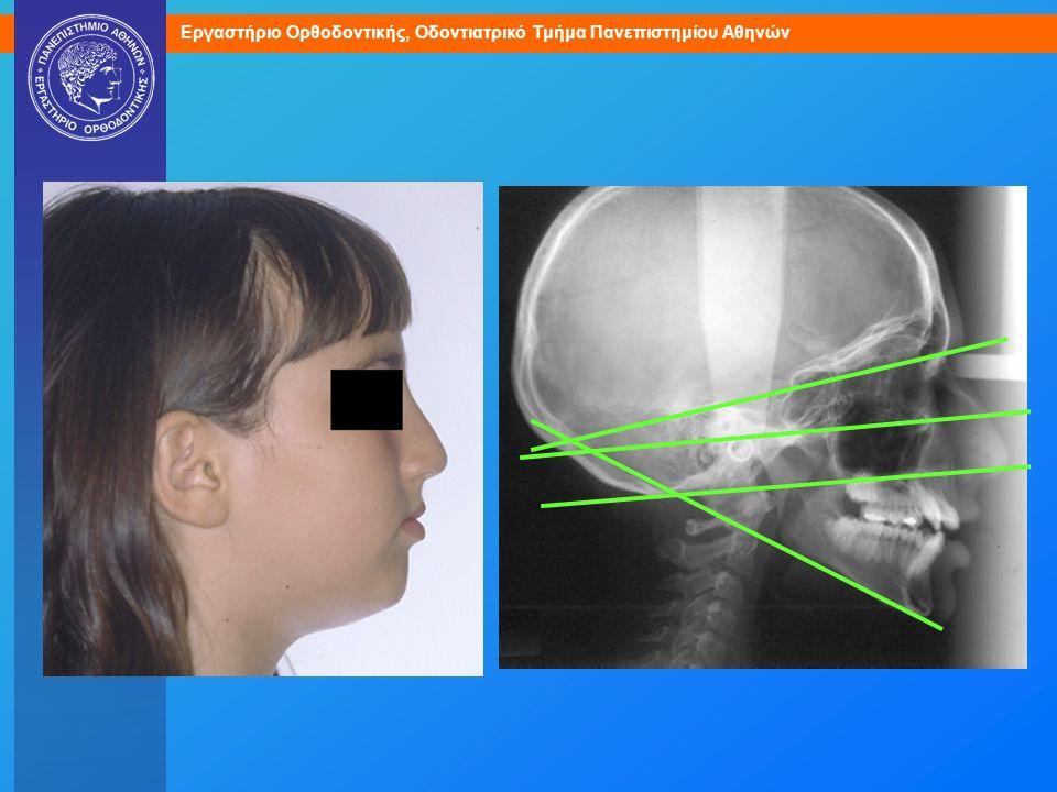 100008 Τάση σκελετικής χασμοδοντίας (υπεραποκλίνοντα σκελετικά επίπεδα).