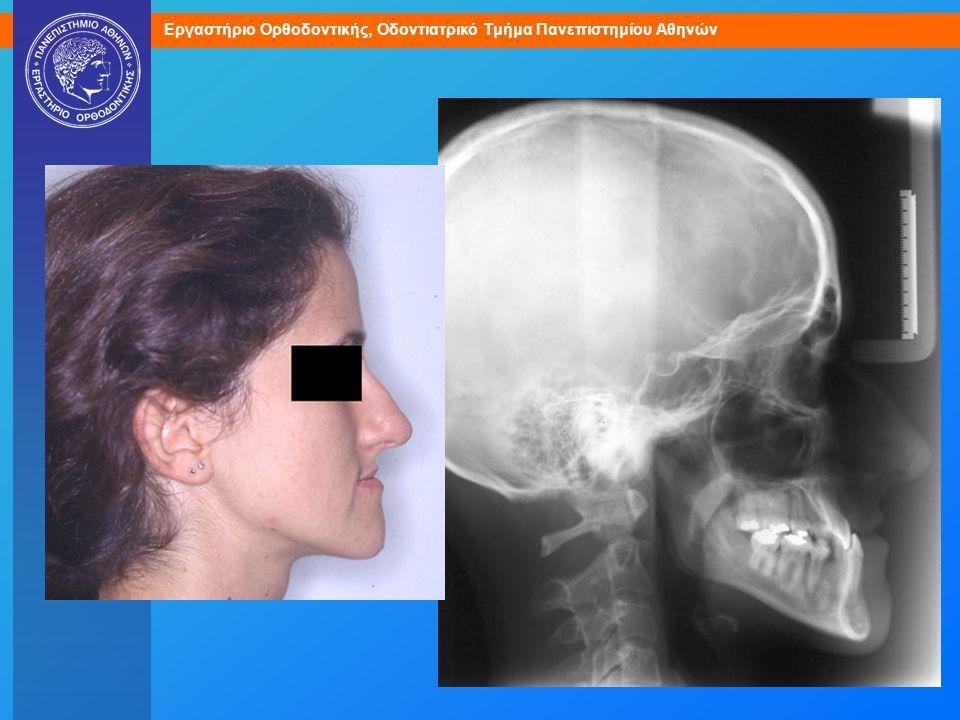 Σκελετική περίπτωση ΙΙΙης Τάξης που απαιτεί χειρουργική διόρθωση.