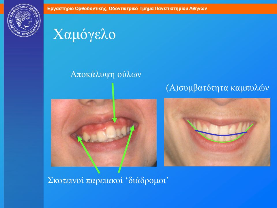 Χαμόγελο Αποκάλυψη ούλων (Α)συμβατότητα καμπυλών