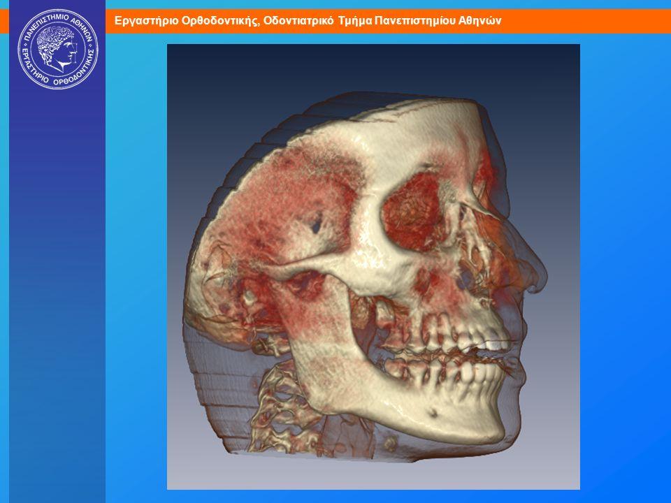 Τομογραφία από οδοντιατρικό αξονικό τομογράφο.