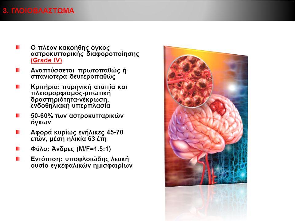 3. ΓΛΟΙΟΒΛΑΣΤΩΜΑ Ο πλέον κακοήθης όγκος αστροκυτταρικής διαφοροποίησης (Grade IV) Αναπτύσσεται πρωτοπαθώς ή σπανιότερα δευτεροπαθώς.