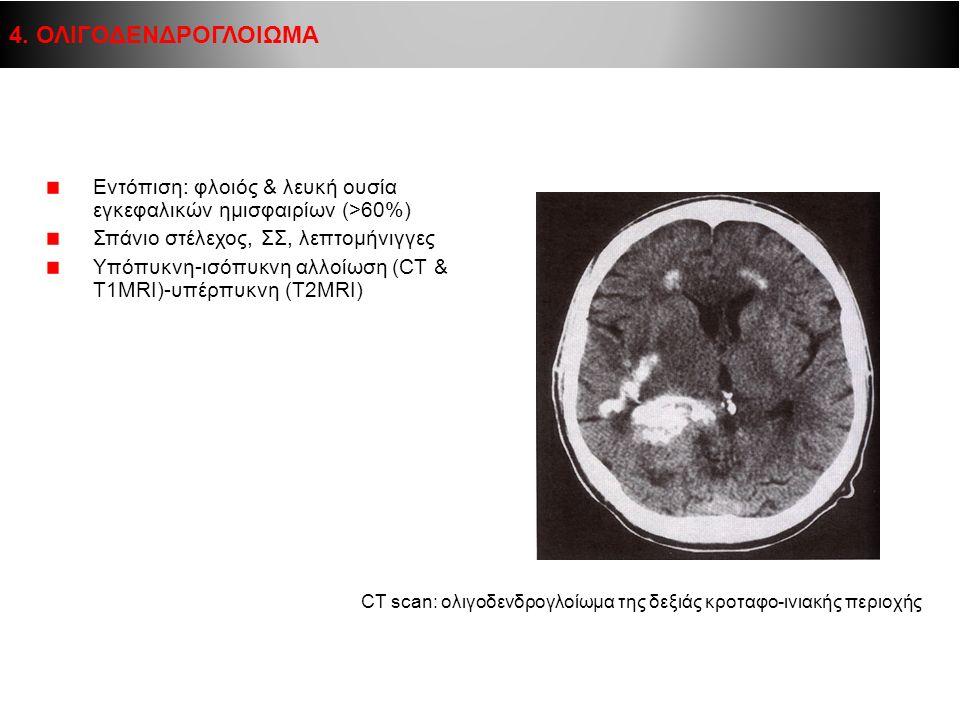 4. ΟΛΙΓΟΔΕΝΔΡΟΓΛΟΙΩΜΑ Εντόπιση: φλοιός & λευκή ουσία εγκεφαλικών ημισφαιρίων (>60%) Σπάνιο στέλεχος, ΣΣ, λεπτομήνιγγες.