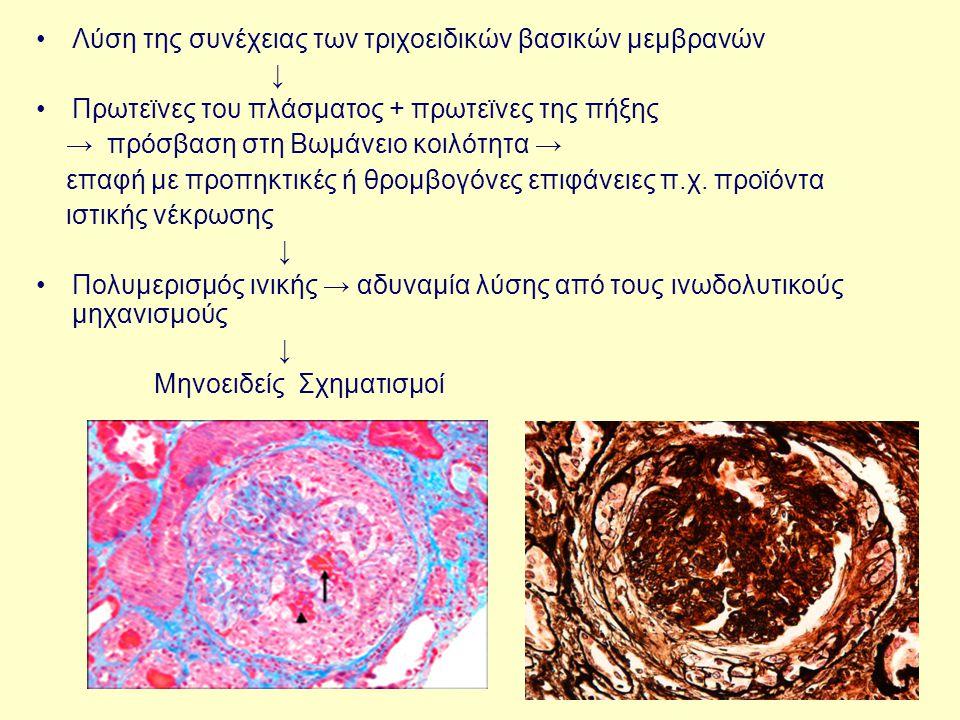 Λύση της συνέχειας των τριχοειδικών βασικών μεμβρανών