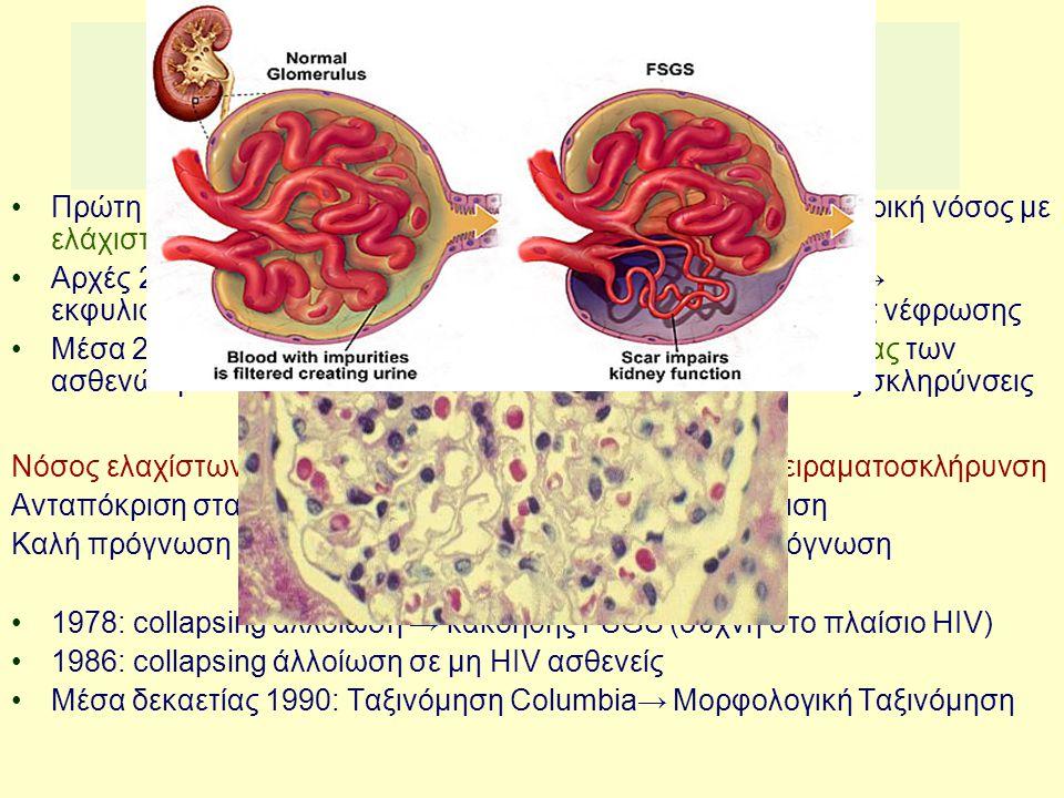 Νεφρωσικό σύνδρομο: χωρίς ανοσοσυμπλέγματα