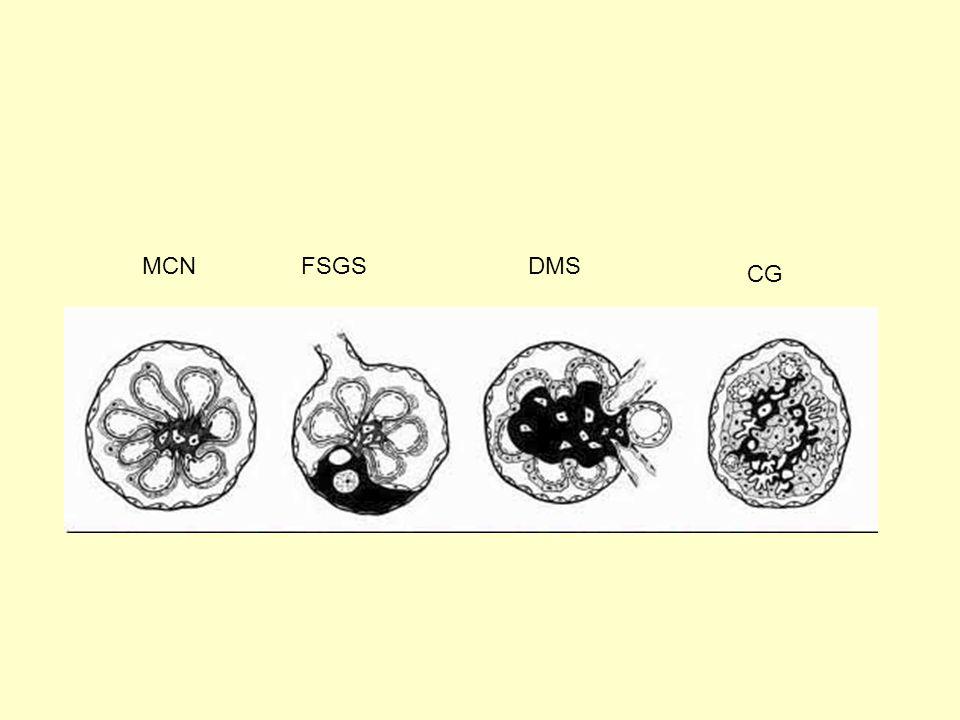 MCN FSGS DMS CG