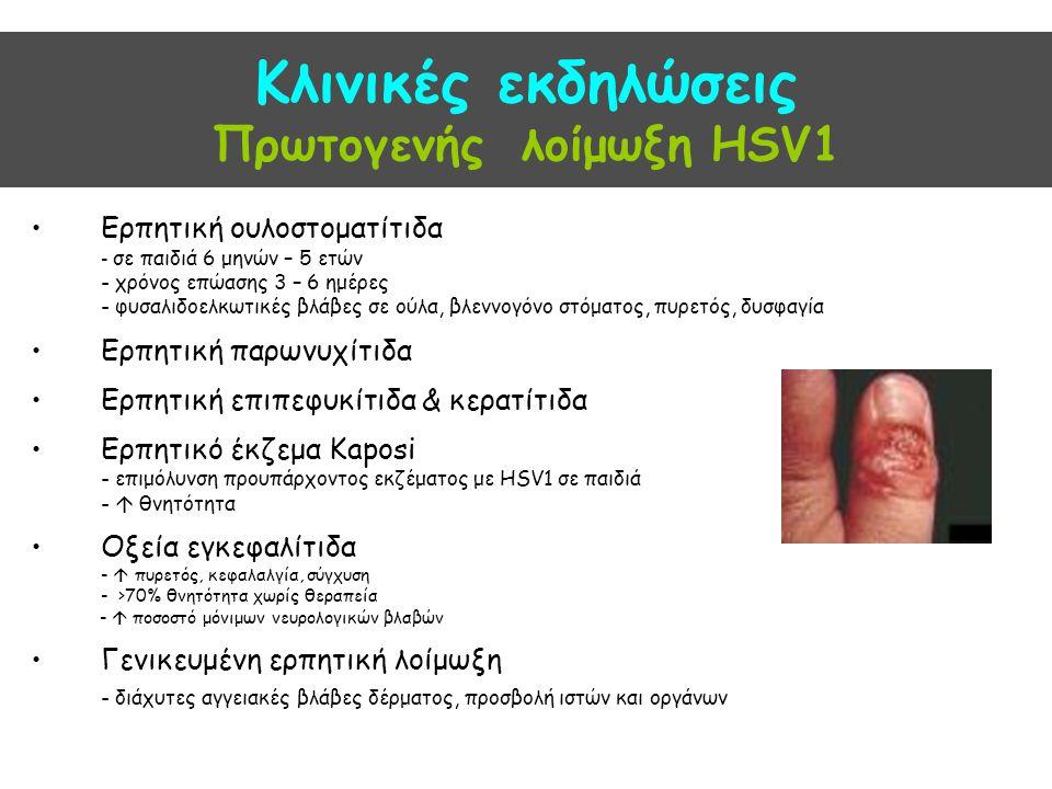 Κλινικές εκδηλώσεις Πρωτογενής λοίμωξη HSV1