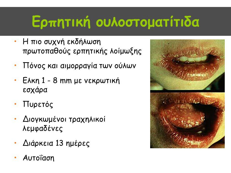 Ερπητική ουλοστοματίτιδα