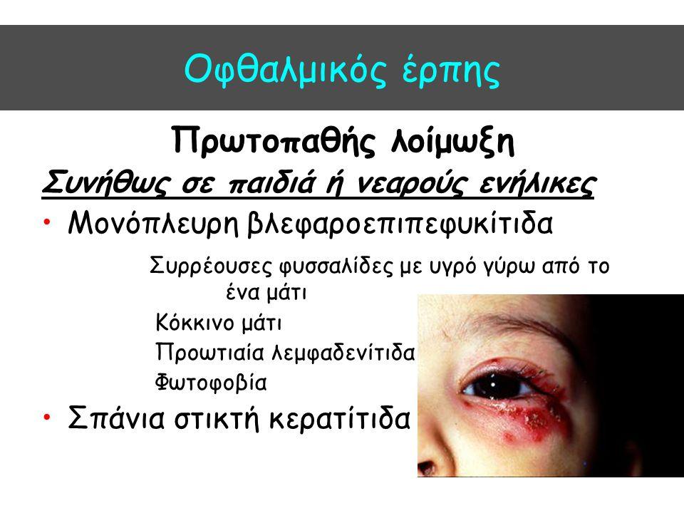 Oφθαλμικός έρπης Πρωτοπαθής λοίμωξη