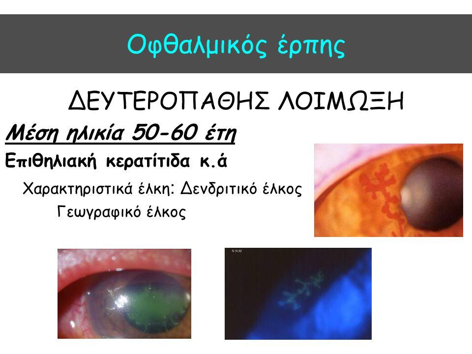 Oφθαλμικός έρπης ΔΕΥΤΕΡΟΠΑΘΗΣ ΛΟΙΜΩΞΗ Μέση ηλικία 50-60 έτη
