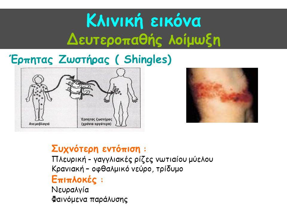 Κλινική εικόνα Δευτεροπαθής λοίμωξη