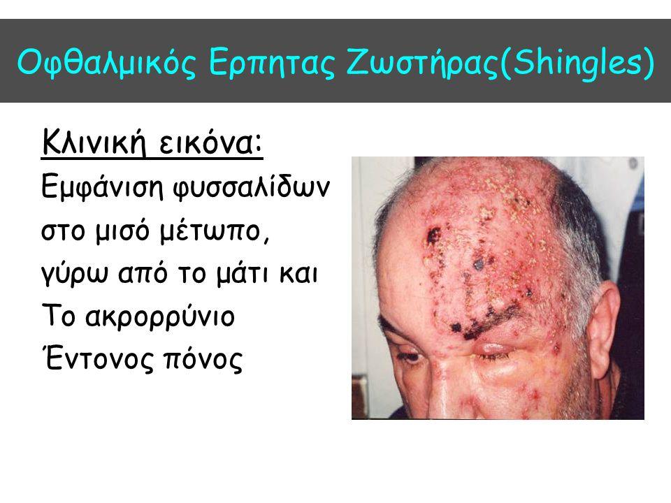 Οφθαλμικός Ερπητας Ζωστήρας(Shingles)