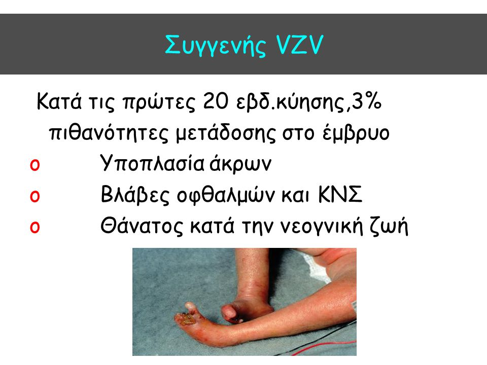 Συγγενής VZV Kατά τις πρώτες 20 εβδ.κύησης,3%
