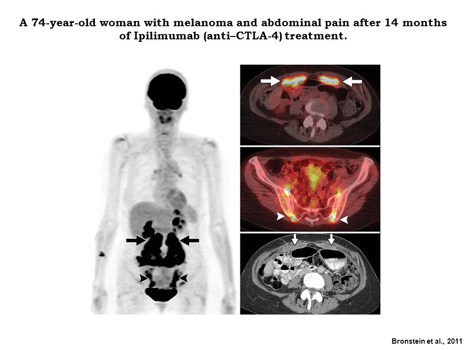 A 74-year-old woman with melanoma and abdominal pain after 14 months of Ipilimumab (anti–CTLA-4) treatment.
