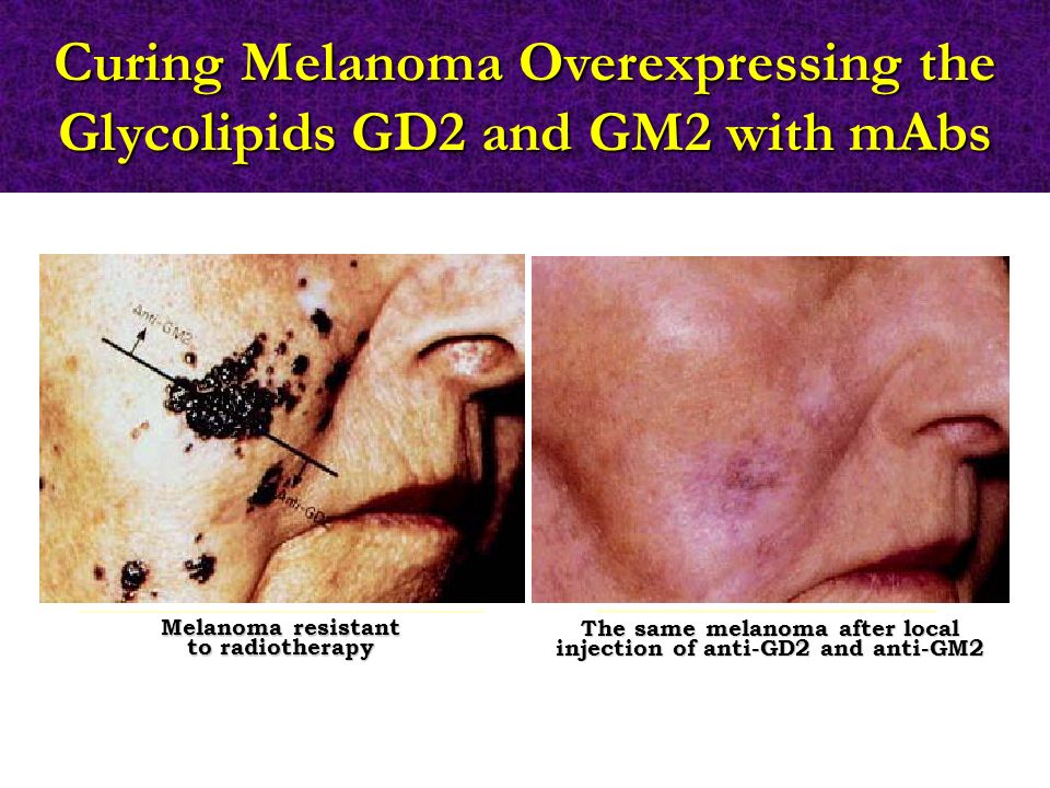 Curing Melanoma Overexpressing the Glycolipids GD2 and GM2 with mAbs