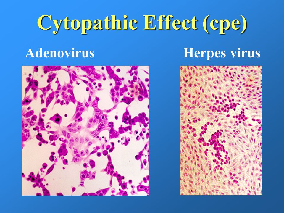 Cytopathic Effect (cpe)