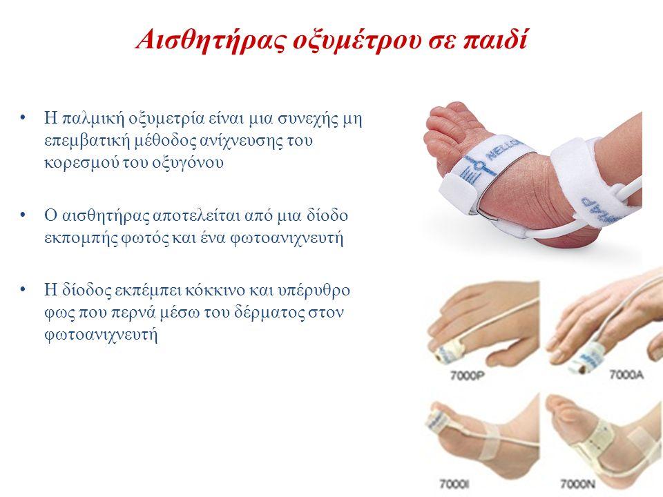 Αισθητήρας οξυμέτρου σε παιδί