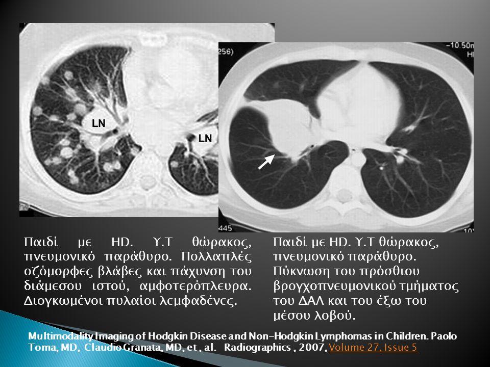 Παιδί με HD. Υ. Τ θώρακος, πνευμονικό παράθυρο