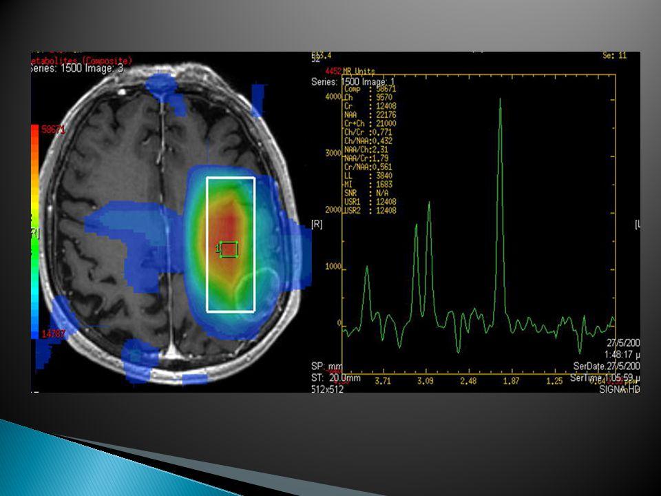 Η Prerfusion Τεχνική: Αναδεικνύει την μικροαγγείωση του εγκεφάλου