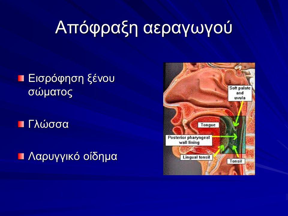 Απόφραξη αεραγωγού Εισρόφηση ξένου σώματος Γλώσσα Λαρυγγικό οίδημα