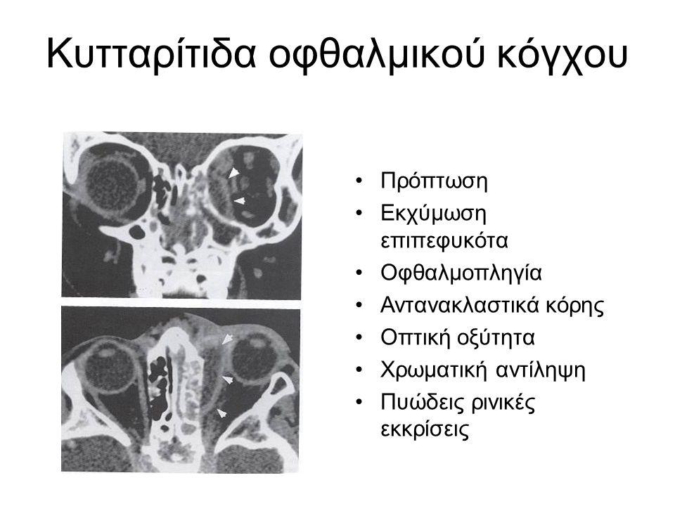 Κυτταρίτιδα οφθαλμικού κόγχου