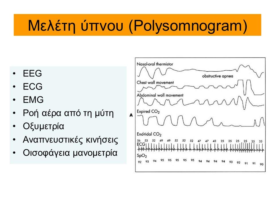 Μελέτη ύπνου (Polysomnogram)