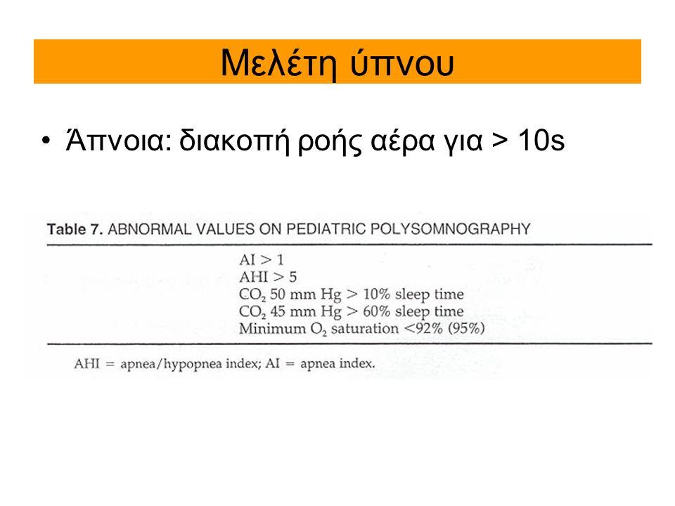 Μελέτη ύπνου Άπνοια: διακοπή ροής αέρα για > 10s