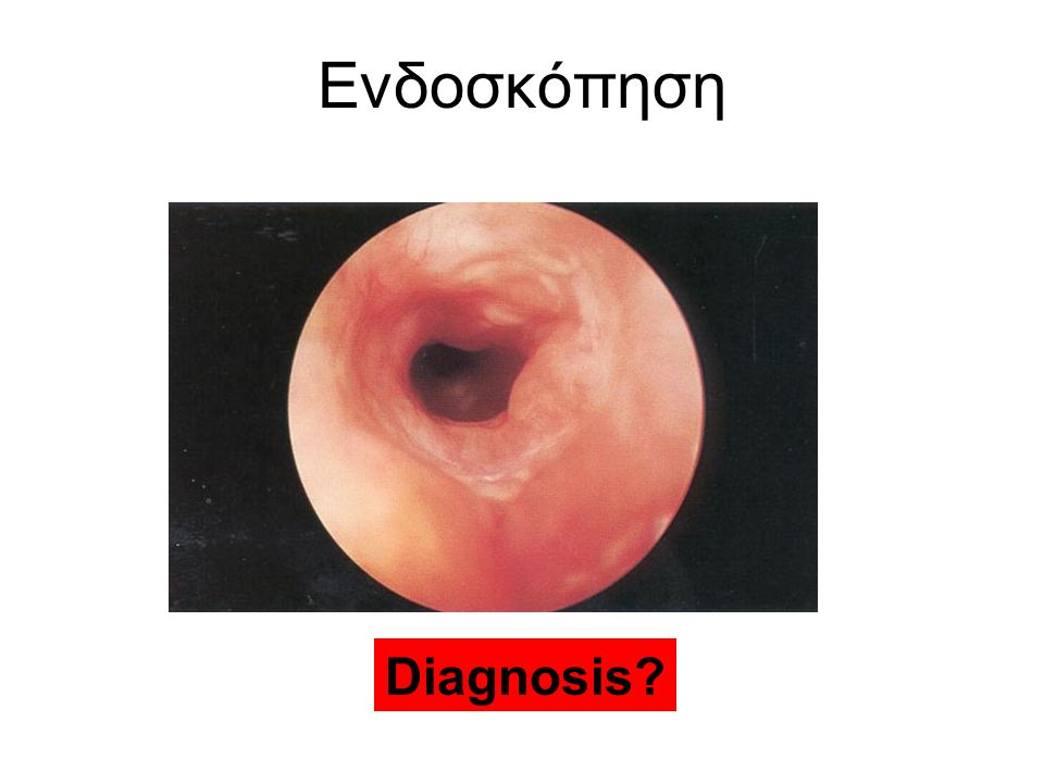 Ενδοσκόπηση Diagnosis