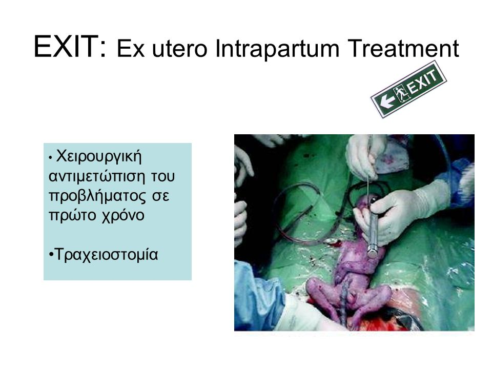 EXIT: Ex utero Intrapartum Treatment