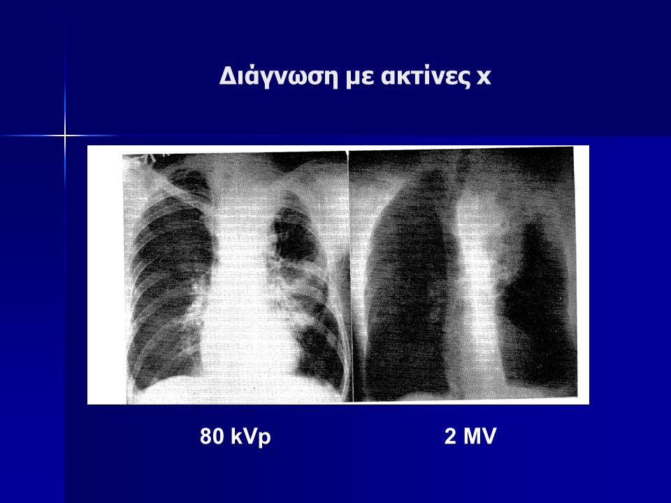 Διάγνωση με ακτίνες x 80 kVp 2 MV