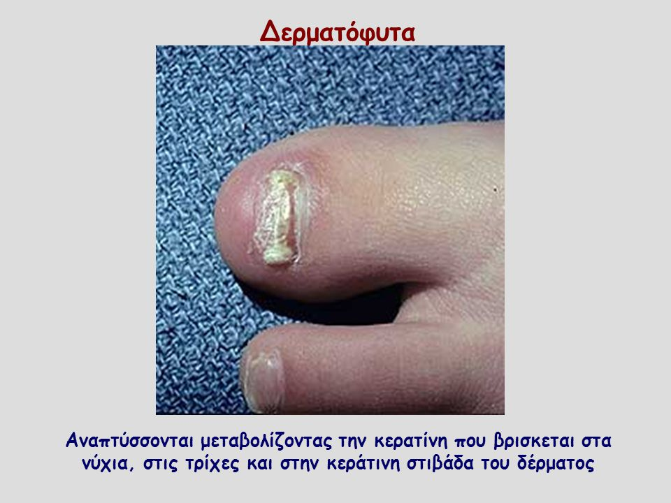 Δερματόφυτα Αναπτύσσονται μεταβολίζοντας την κερατίνη που βρισκεται στα νύχια, στις τρίχες και στην κεράτινη στιβάδα του δέρματος.