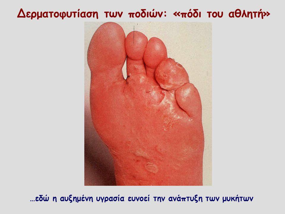 Δερματοφυτίαση των ποδιών: «πόδι του αθλητή»