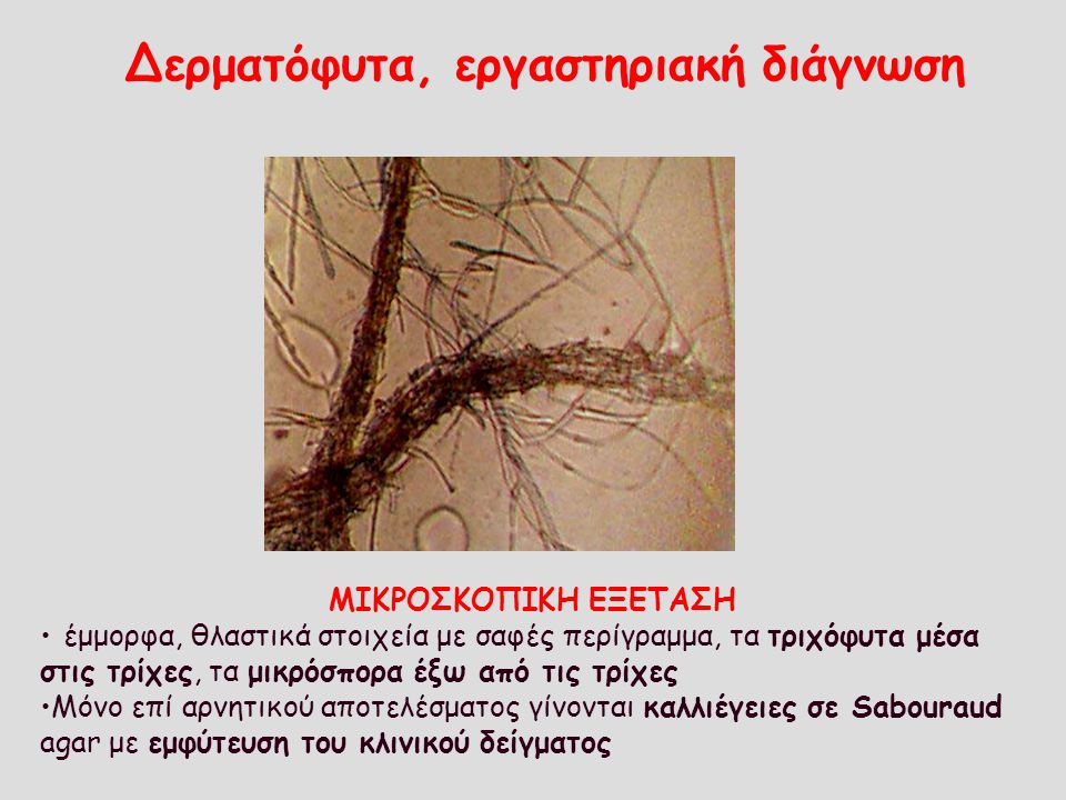 Δερματόφυτα, εργαστηριακή διάγνωση