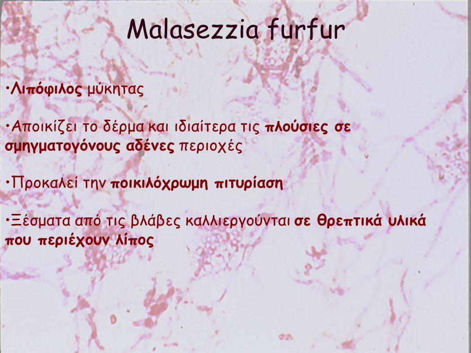 Malasezzia furfur Λιπόφιλος μύκητας