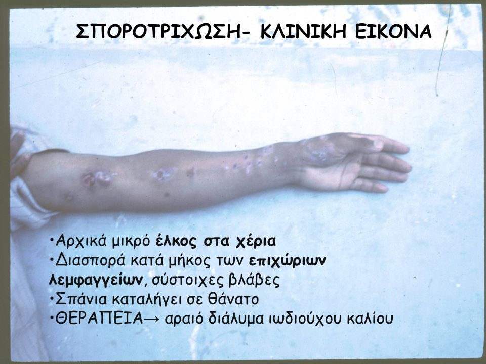 ΣΠΟΡΟΤΡΙΧΩΣΗ- ΚΛΙΝΙΚΗ ΕΙΚΟΝΑ