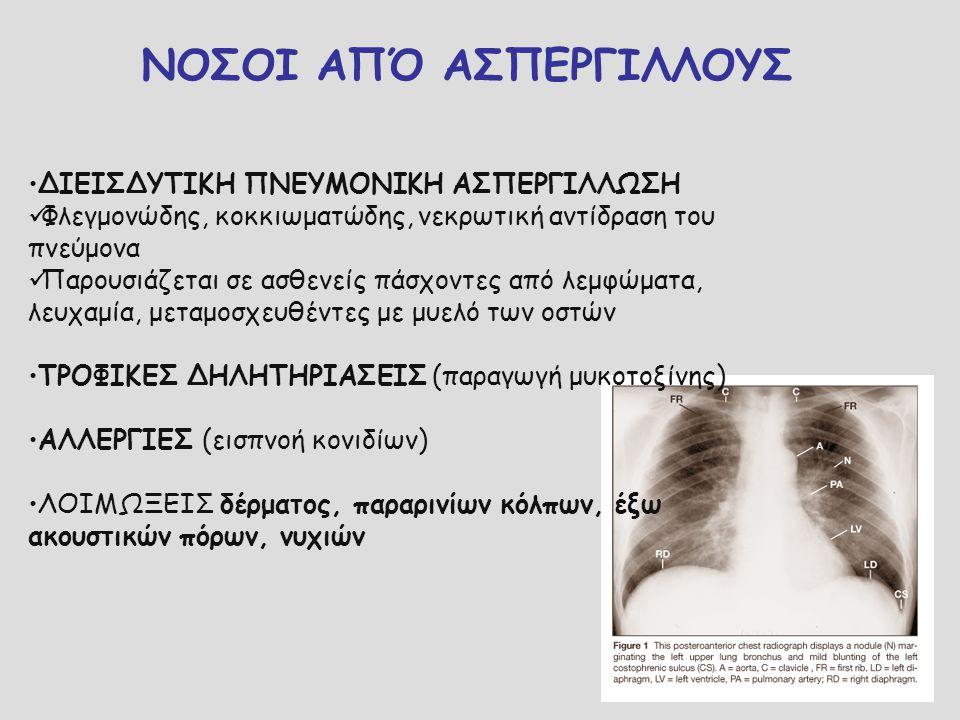 ΝΟΣΟΙ ΑΠΌ ΑΣΠΕΡΓΙΛΛΟΥΣ