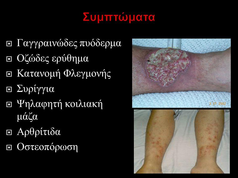 Συμπτώματα Γαγγραινώδες πυόδερμα Οζώδες ερύθημα Κατανομή Φλεγμονής