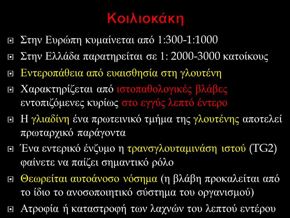 Κοιλιοκάκη Στην Ευρώπη κυμαίνεται από 1:300-1:1000