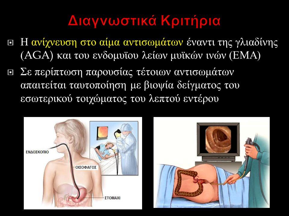 Διαγνωστικά Κριτήρια Η ανίχνευση στο αίμα αντισωμάτων έναντι της γλιαδίνης (AGA) και του ενδομυϊου λείων μυϊκών ινών (ΕΜΑ)