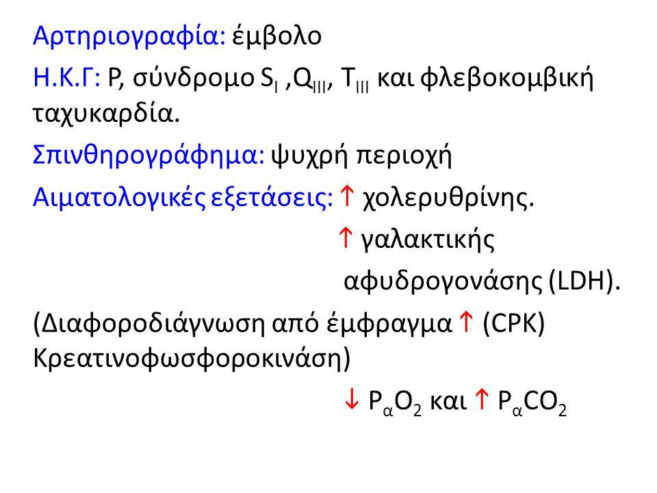 Αρτηριογραφία: έμβολο Η. Κ