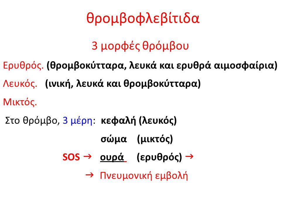 θρομβοφλεβίτιδα 3 μορφές θρόμβου