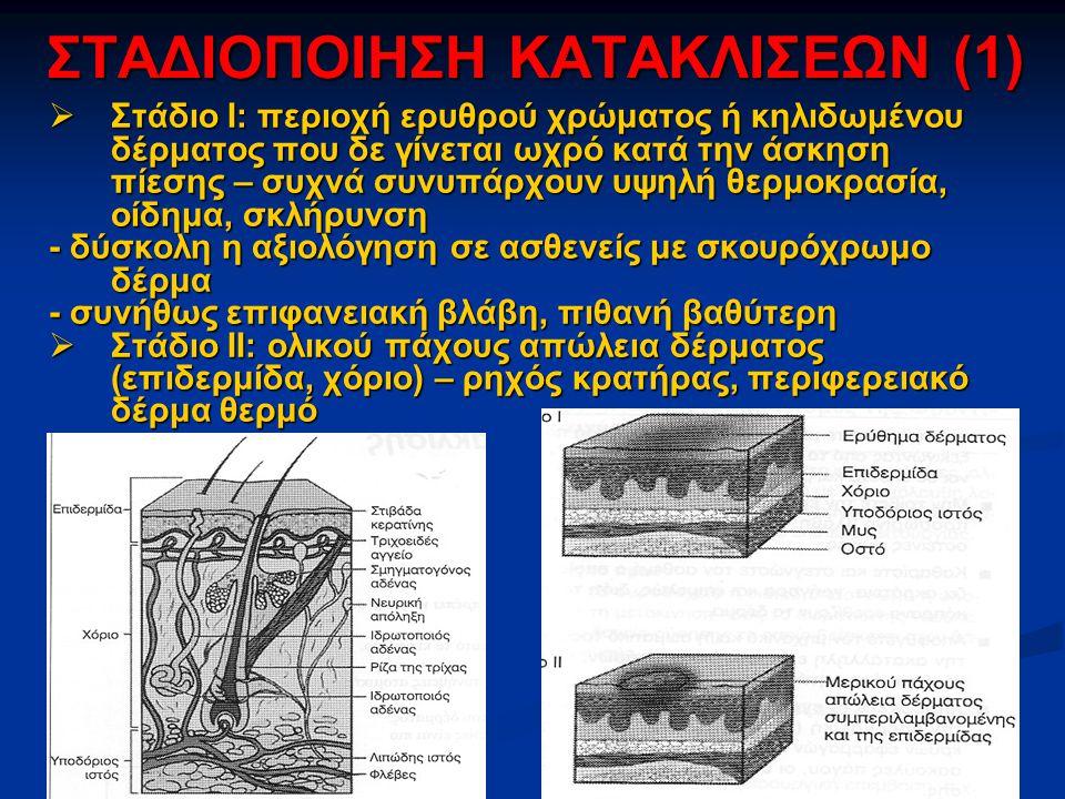 ΣΤΑΔΙΟΠΟΙΗΣΗ ΚΑΤΑΚΛΙΣΕΩΝ (1)